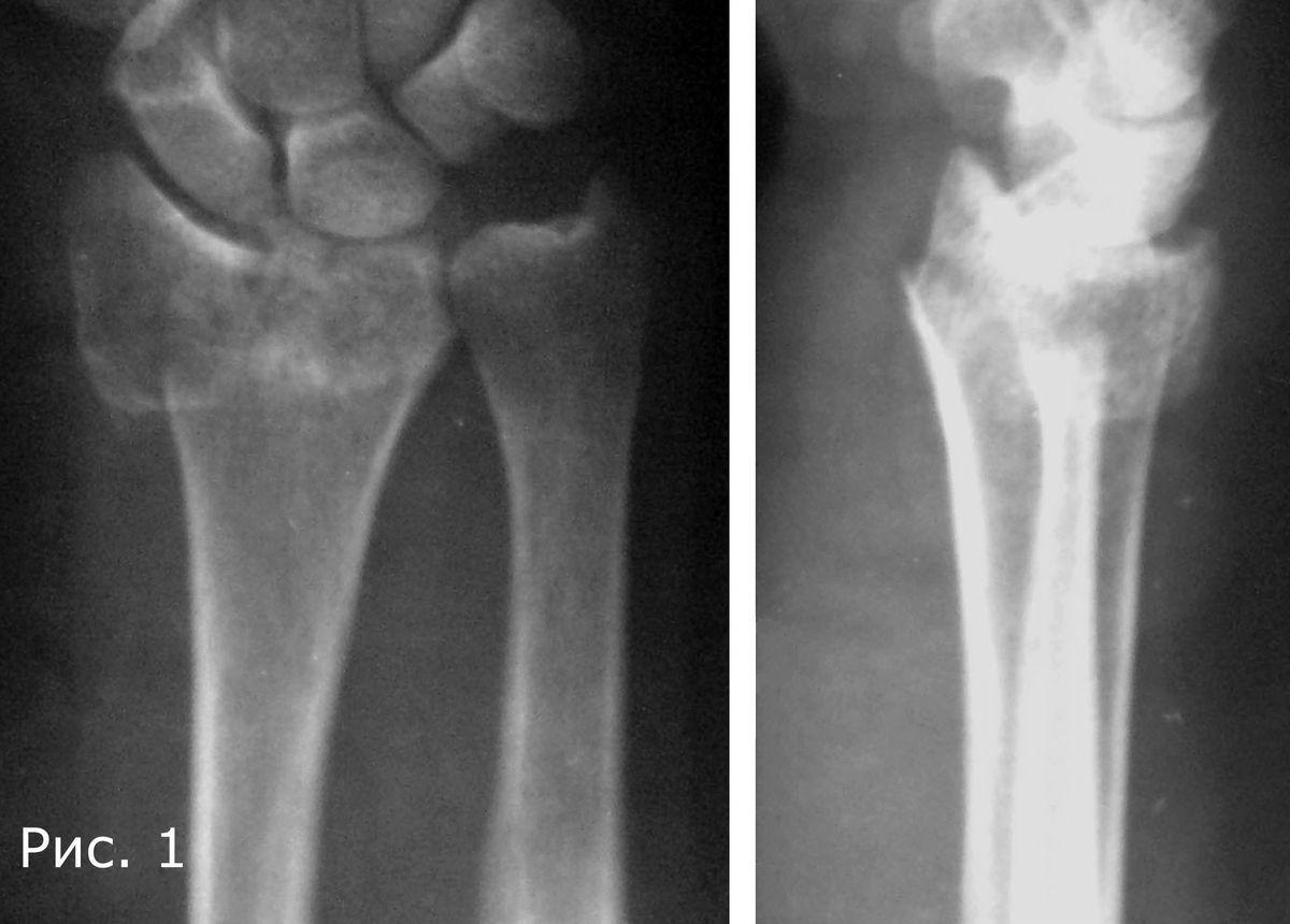 Внутрисуставной перелом лучевой ортез на коленный сустав orlett so-303